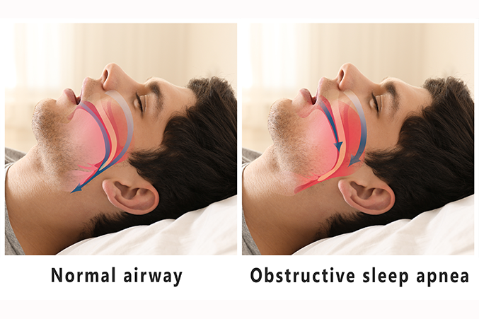 Nasal Congestion Increases the Risk of Obstructive Sleep Apnoea